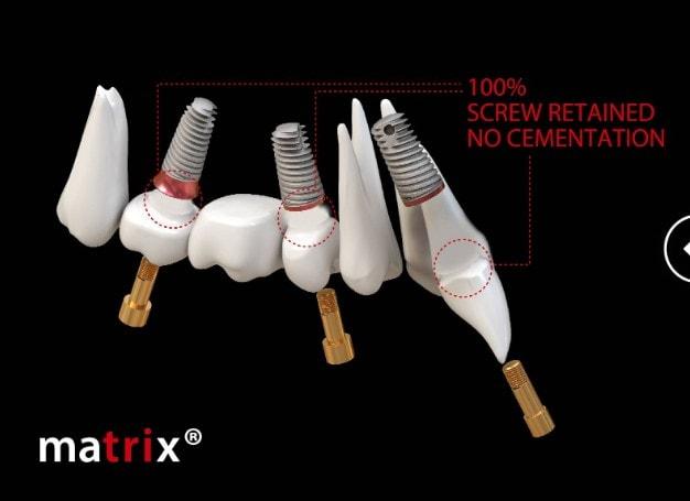 Implanturile digitale elimină foarte multe componente și simplifică soluția protetică - dr. Adina Fulea